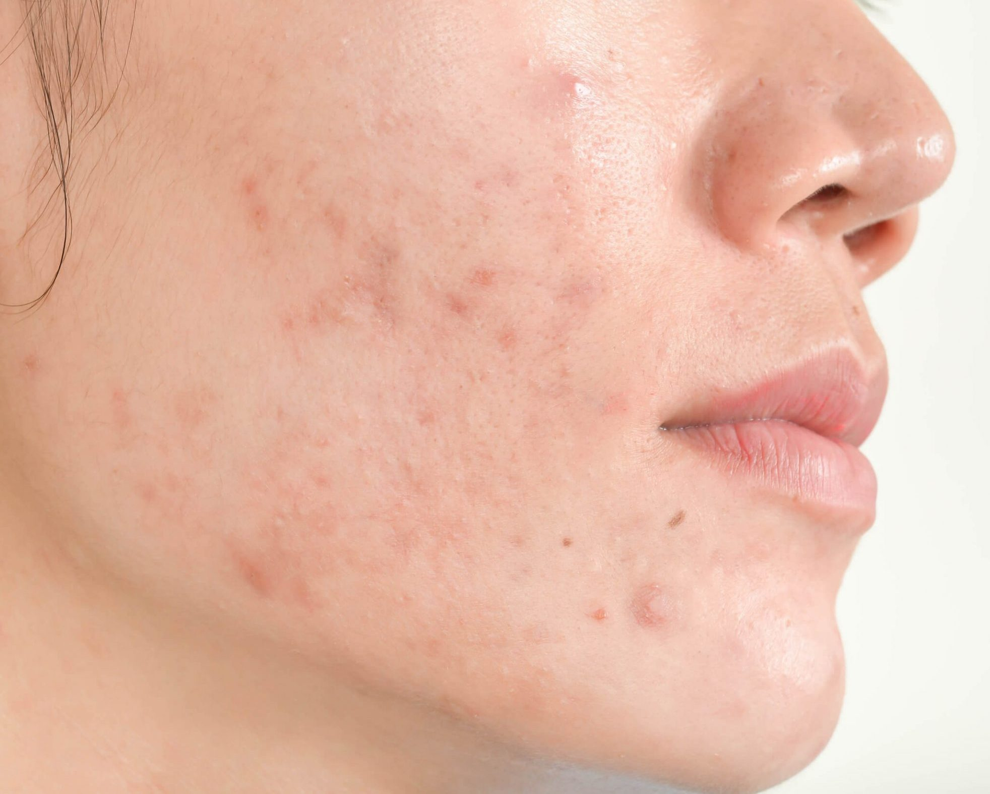 causes of acne scars