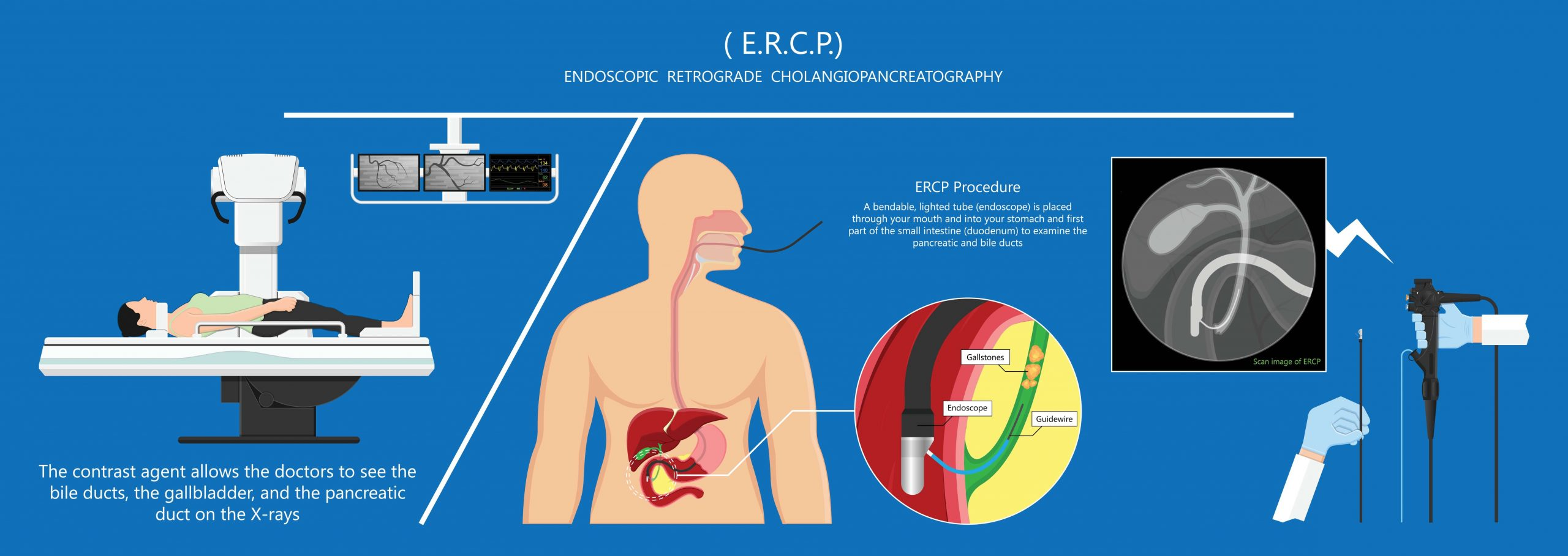 ERCP-information for Diagnosis of Gallstones