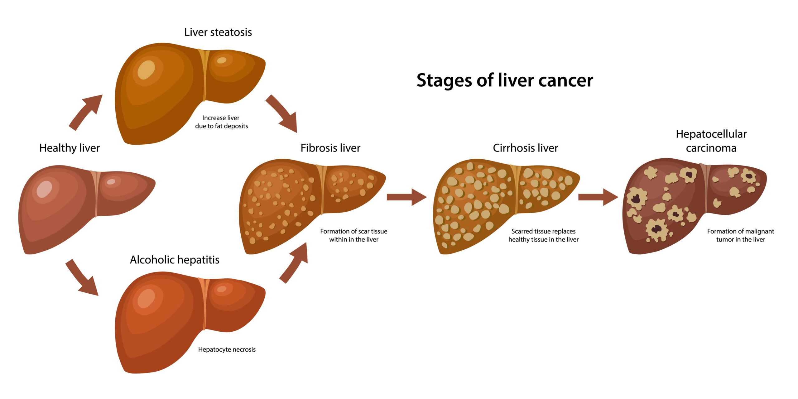 Cirrhosis (Cirrhosis of the Liver) – Causes And Symptoms of Liver Cirrhosis