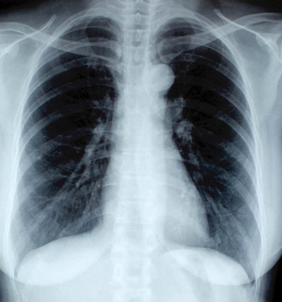 chest x-ray and chest radiograph