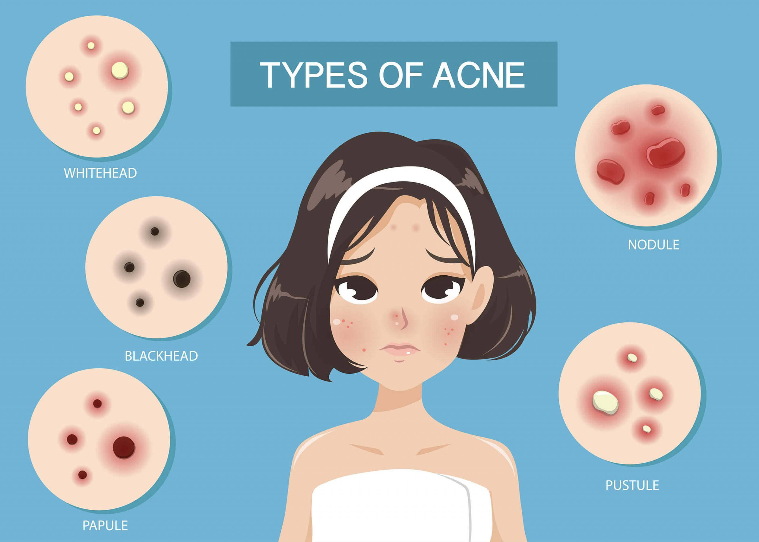 types of Acne, signs and symptoms of acne vulgaris