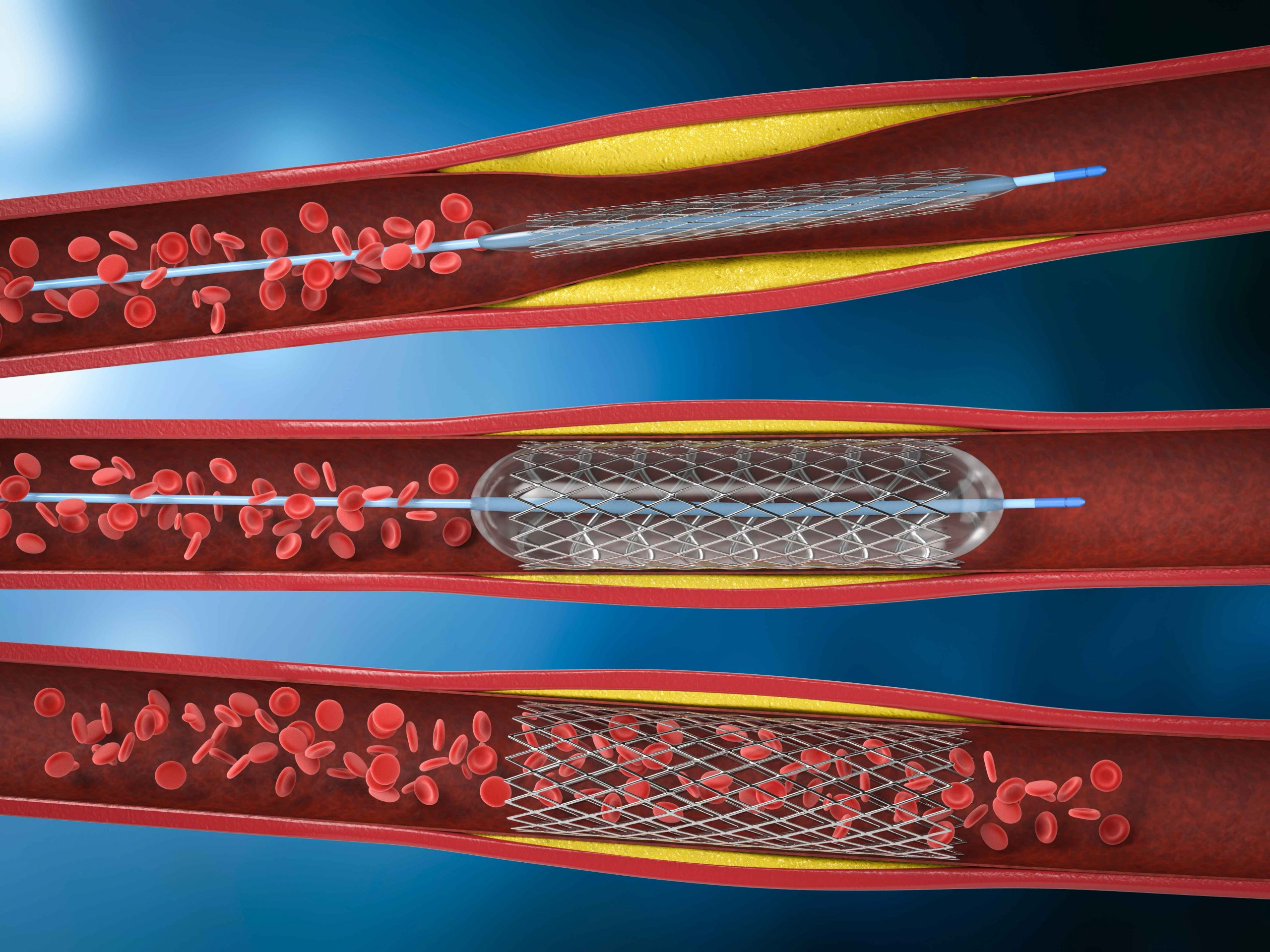 Angioplasty / Stent placement