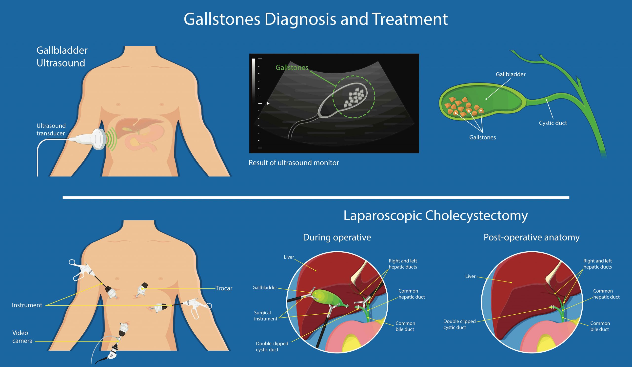 Complications, Causes, Signs and Symptoms of Gallstones (Cholelithiasis)