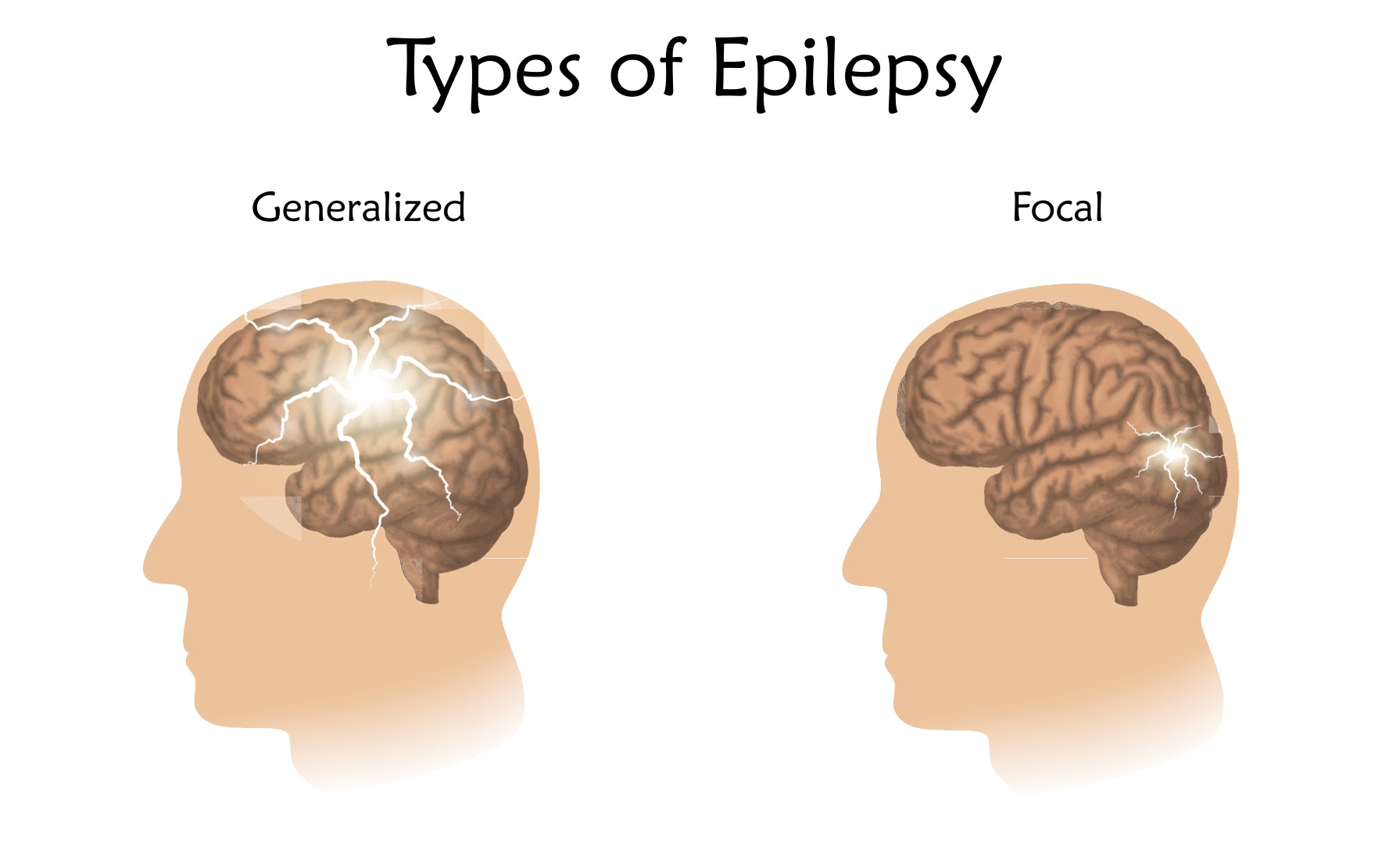 causes and symptoms of epilepsy