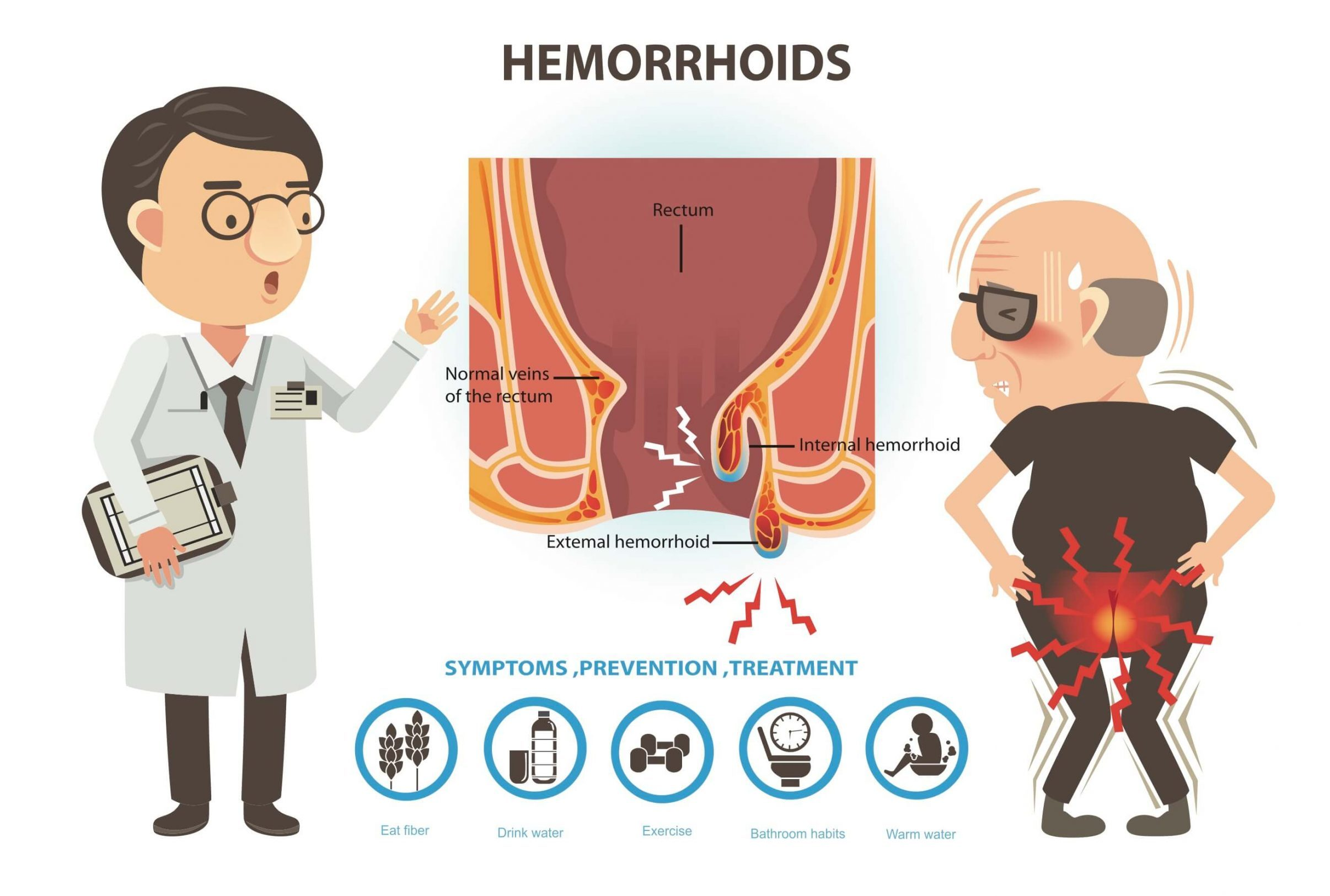 Causes, Signs And Symptoms of Piles | What Are Piles Hemorrhoids?