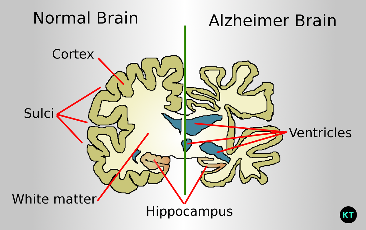 What is Alzheimer's Disease & how to avoid it